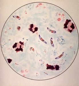 microscopic-view-of-a-malaria-parasite-everett