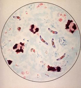 microscopic-view-of-a-malaria-parasite-everett